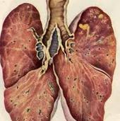 Как провести дезинфекцию при туберкулезе