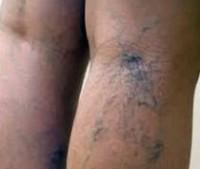 Болезни ног и их устранение