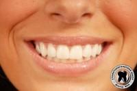 1538661736_ortopediya-zubov1