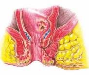 Лечение анальных свищей